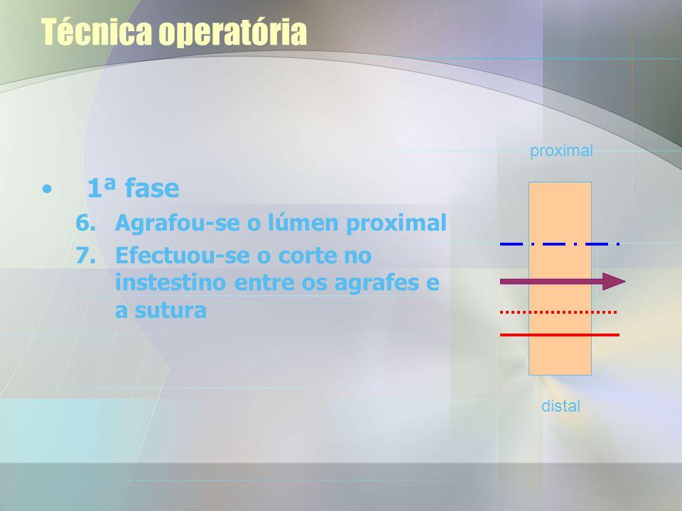 Técnica operatória 1ª fase 1.Estabeleceu-se o pneu- moperitoneu (12mm Hg) 2.Desvascularização do cólon descendente 3.Corte na mesentéria 4.Apertou-se