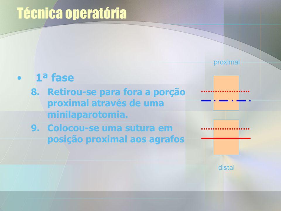 Técnica operatória 1ª fase 6.Agrafou-se o lúmen proximal 7.Efectuou-se o corte no instestino entre os agrafes e a sutura distal proximal