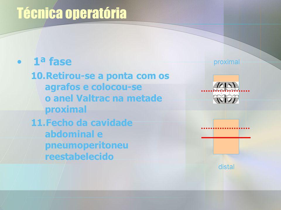 Técnica operatória 1ª fase 8.Retirou-se para fora a porção proximal através de uma minilaparotomia. 9.Colocou-se uma sutura em posição proximal aos ag