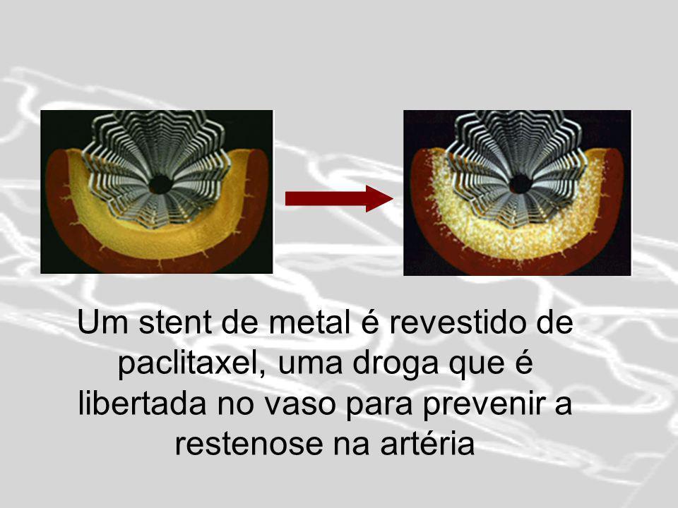 Trabalho realizado por: Ana Carapeto Ana Gafaniz Bruna Mota Engenharia Biomédica