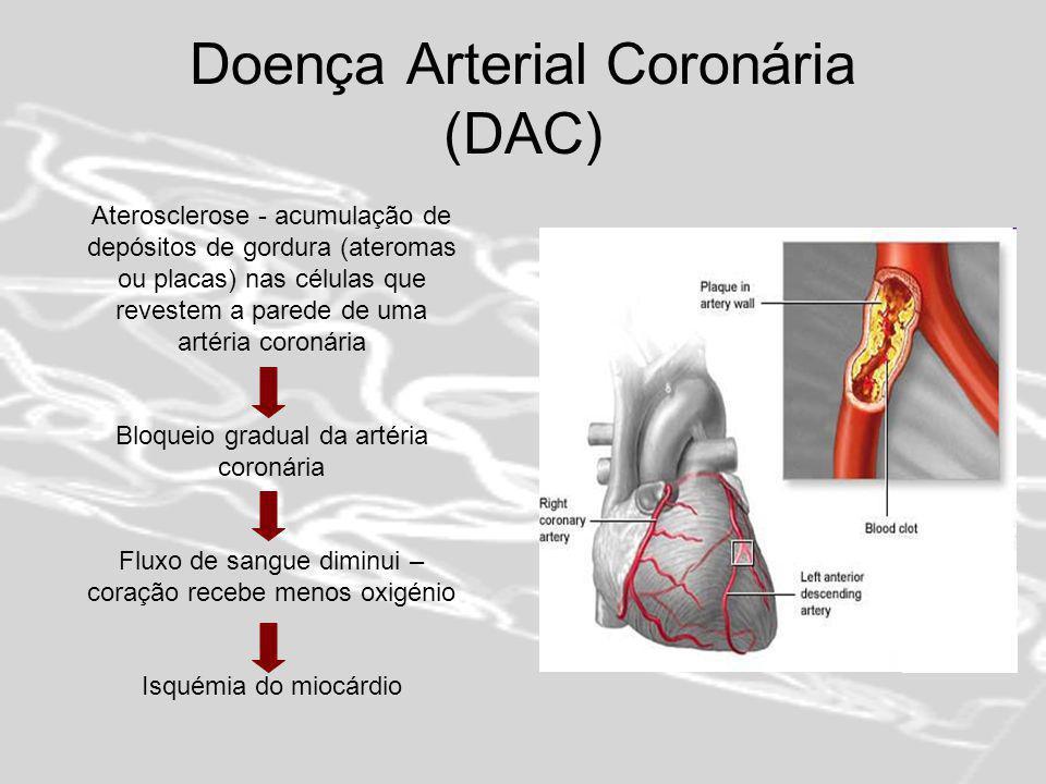 Doença arterial coronária (DAC) Isquémia do miocárdio: Angina de peito - estável - instável Enfarte agudo do miocárdio ou ataque cardíaco - ruptura do miocárdio - coágulos sanguíneos - insuficiência cardíaca - arritmias - pericardite