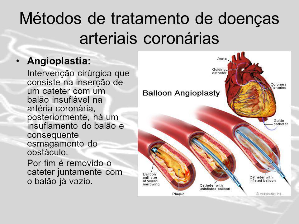 Métodos de tratamento de doenças arteriais coronárias Stent: Pequena armação metálica tubular que é introduzida na artéria coronária, por intermédio de um balão fixado na ponta do cateter.