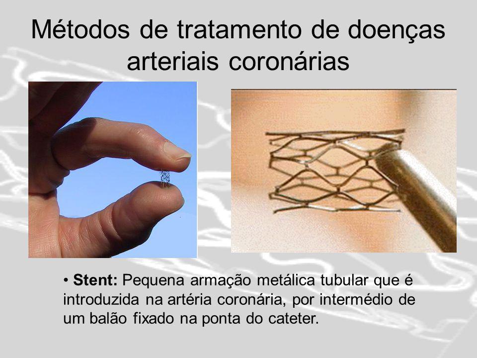 Métodos de tratamento de doenças arteriais coronárias Angioplastia coronária de uma estenose com implantação de stent