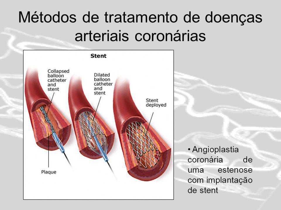 Stent Revestido de Paclitaxel Reduz em 80% o risco de restenose entre os doentes com diabetes Os seus benefícios são mais evidentes nas pequenas artérias coronárias e nas lesões mais longas Reduz a necessidade de cirurgia de derivação (bypass) das artérias coronárias É um método seguro