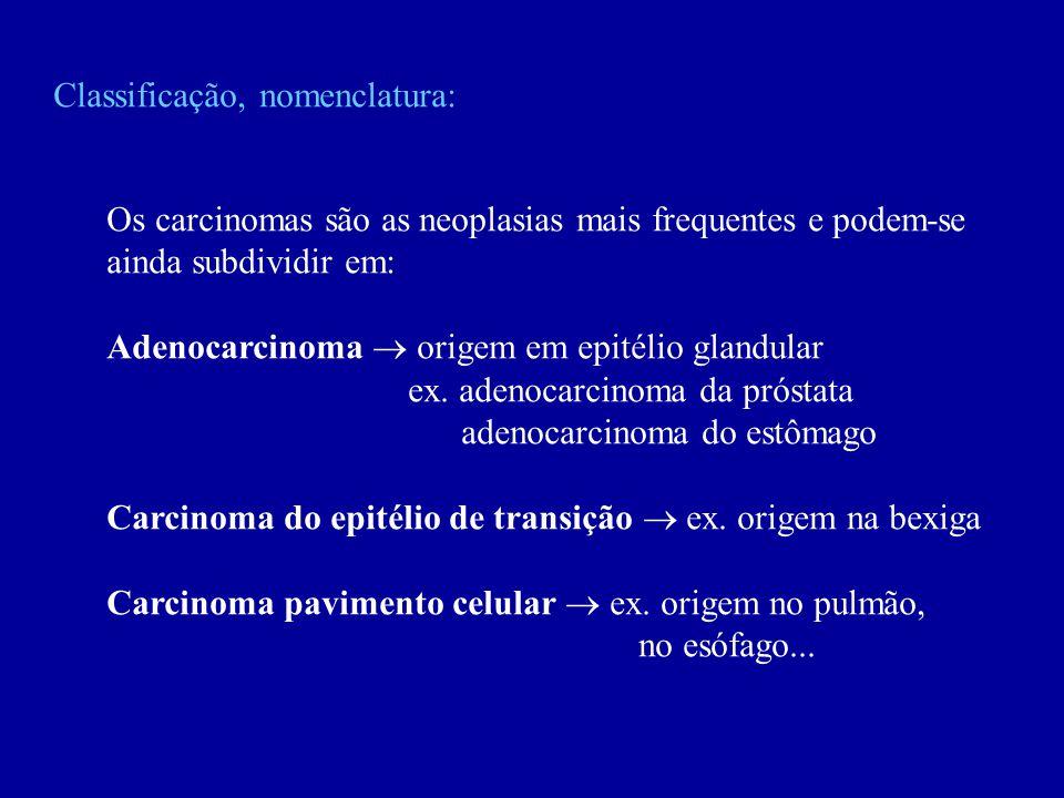 Classificação, nomenclatura: Os carcinomas são as neoplasias mais frequentes e podem-se ainda subdividir em: Adenocarcinoma origem em epitélio glandul