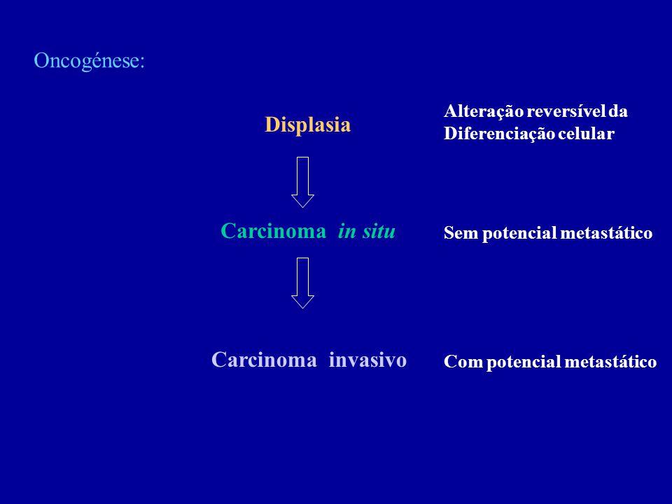 Oncogénese: Displasia Carcinoma in situ Carcinoma invasivo Com potencial metastático Sem potencial metastático Alteração reversível da Diferenciação c