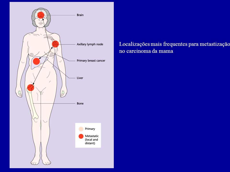 Localizações mais frequentes para metastização no carcinoma da mama