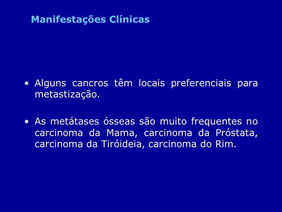 Alguns cancros têm locais preferenciais para metastização. As metátases ósseas são muito frequentes no carcinoma da Mama, carcinoma da Próstata, carci