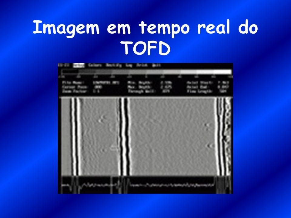 Imagem em tempo real do TOFD