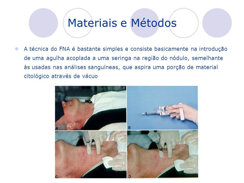 Materiais e Métodos A técnica do FNA é bastante simples e consiste basicamente na introdução de uma agulha acoplada a uma seringa na região do nódulo,