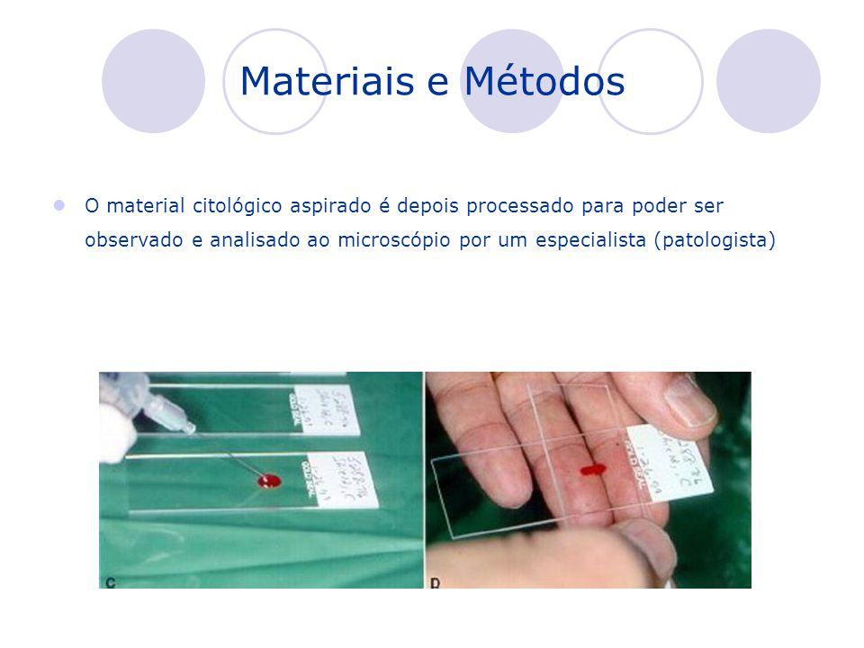 Materiais e Métodos O material citológico aspirado é depois processado para poder ser observado e analisado ao microscópio por um especialista (patolo