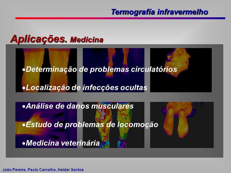 Termografía infravermelho João Pereira, Paulo Carvalho, Helder Santos Aplicações. Medicina Determinação de problemas circulatórios Localização de infe