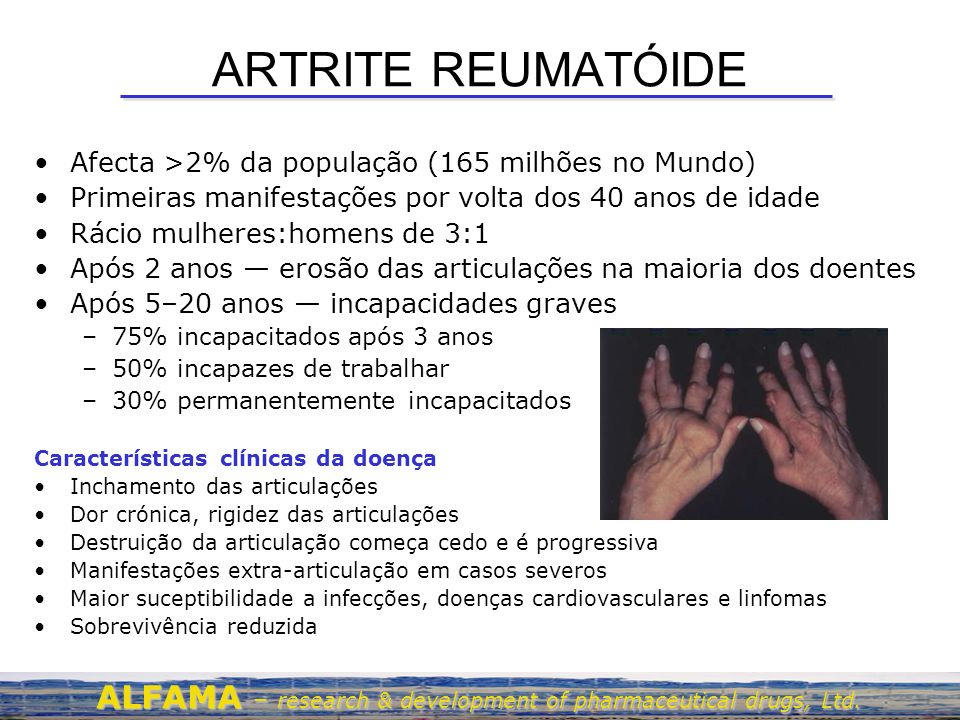 ARTRITE REUMATÓIDE Afecta >2% da população (165 milhões no Mundo) Primeiras manifestações por volta dos 40 anos de idade Rácio mulheres:homens de 3:1