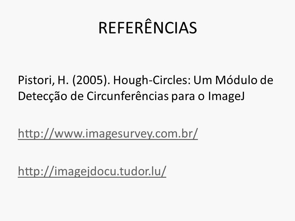 REFERÊNCIAS Pistori, H. (2005). Hough-Circles: Um Módulo de Detecção de Circunferências para o ImageJ http://www.imagesurvey.com.br/ http://imagejdocu