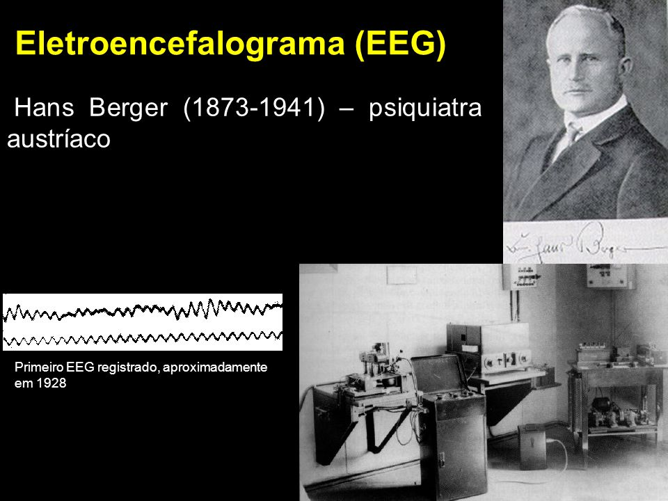 EEG Eletroencefalograma Reflete a atividade elétrica espontânea do cérebro Ondas são geradas pela atividade sináptica Classificado pela freqüência das ondas existentes