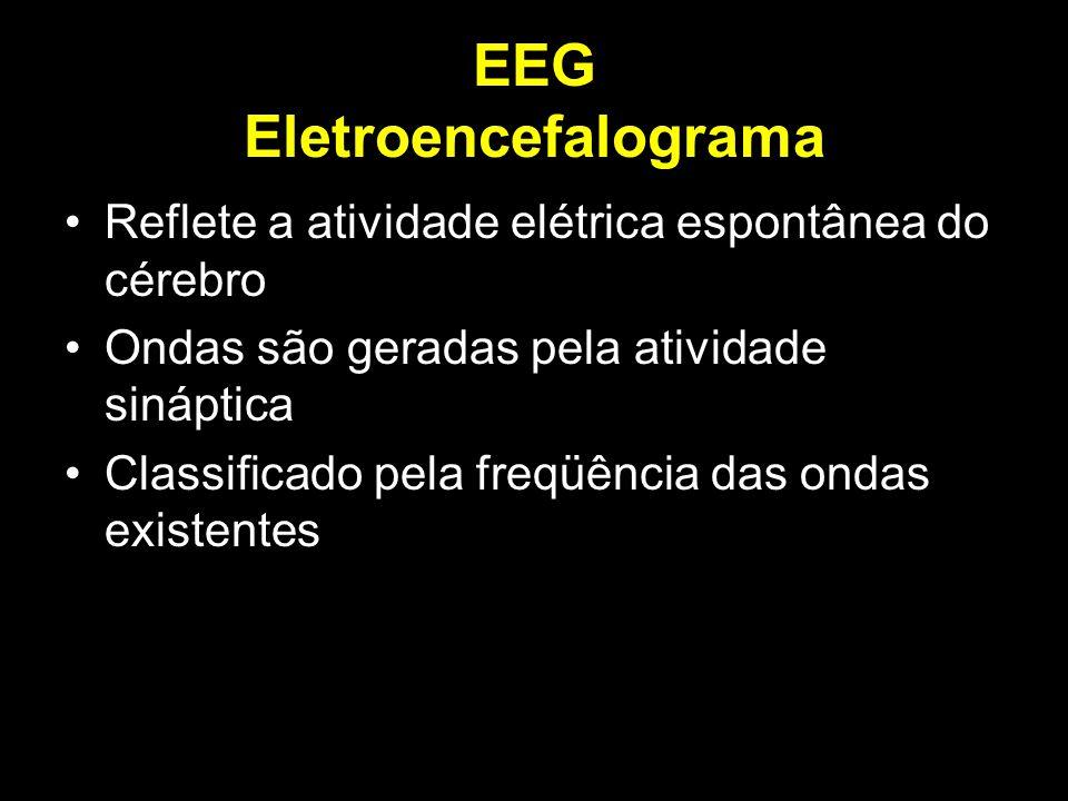EEG Eletroencefalograma Reflete a atividade elétrica espontânea do cérebro Ondas são geradas pela atividade sináptica Classificado pela freqüência das