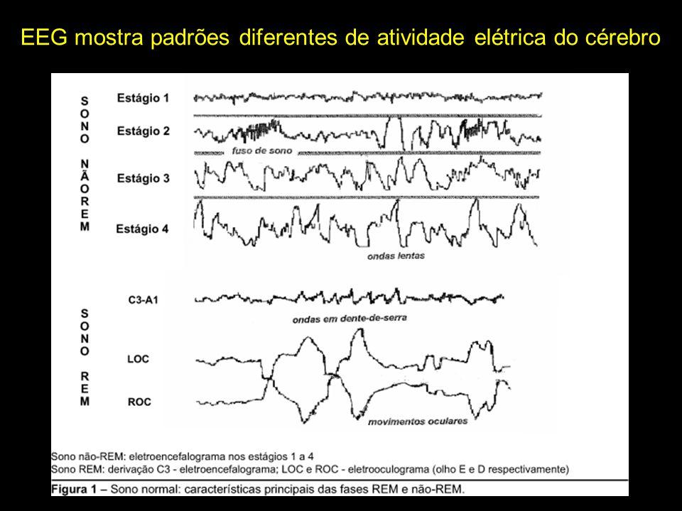 EEG mostra padrões diferentes de atividade elétrica do cérebro