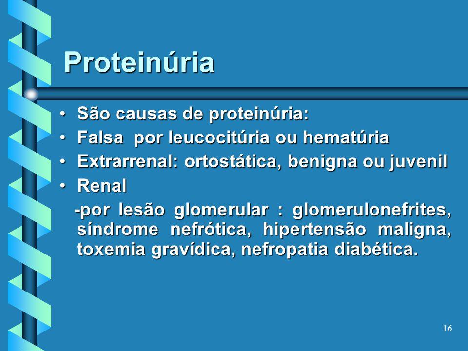 16 Proteinúria São causas de proteinúria:São causas de proteinúria: Falsa por leucocitúria ou hematúriaFalsa por leucocitúria ou hematúria Extrarrenal: ortostática, benigna ou juvenilExtrarrenal: ortostática, benigna ou juvenil RenalRenal -por lesão glomerular : glomerulonefrites, síndrome nefrótica, hipertensão maligna, toxemia gravídica, nefropatia diabética.
