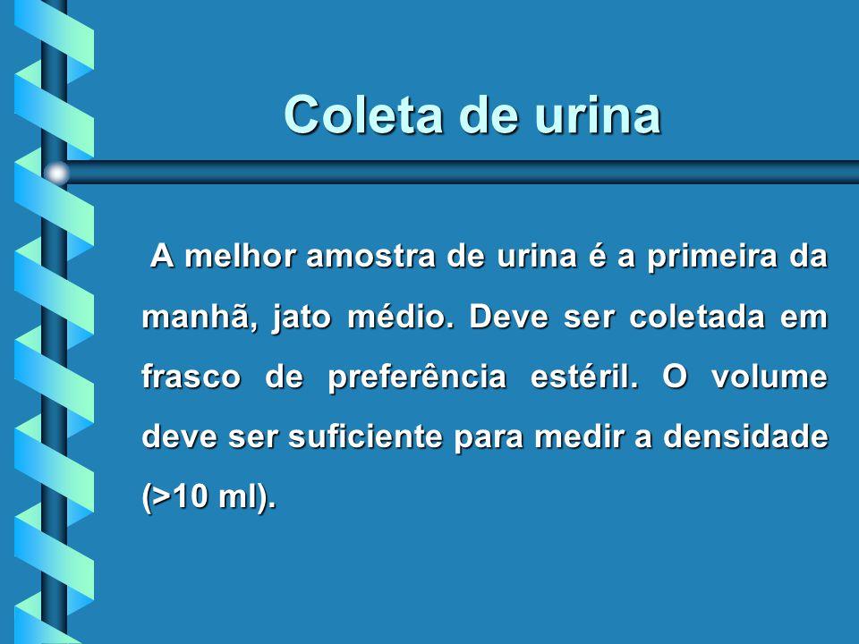 Coleta de urina A melhor amostra de urina é a primeira da manhã, jato médio.