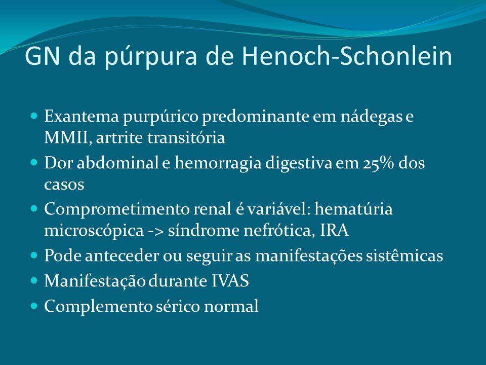 GN da púrpura de Henoch-Schonlein Exantema purpúrico predominante em nádegas e MMII, artrite transitória Dor abdominal e hemorragia digestiva em 25% dos casos Comprometimento renal é variável: hematúria microscópica -> síndrome nefrótica, IRA Pode anteceder ou seguir as manifestações sistêmicas Manifestação durante IVAS Complemento sérico normal