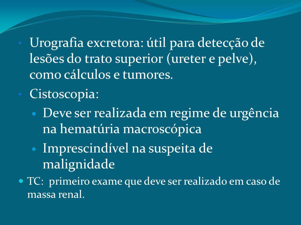 Urografia excretora: útil para detecção de lesões do trato superior (ureter e pelve), como cálculos e tumores.