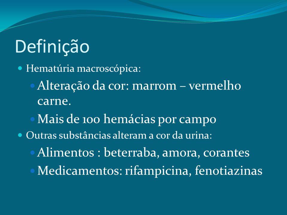 Definição Hematúria macroscópica: Alteração da cor: marrom – vermelho carne.