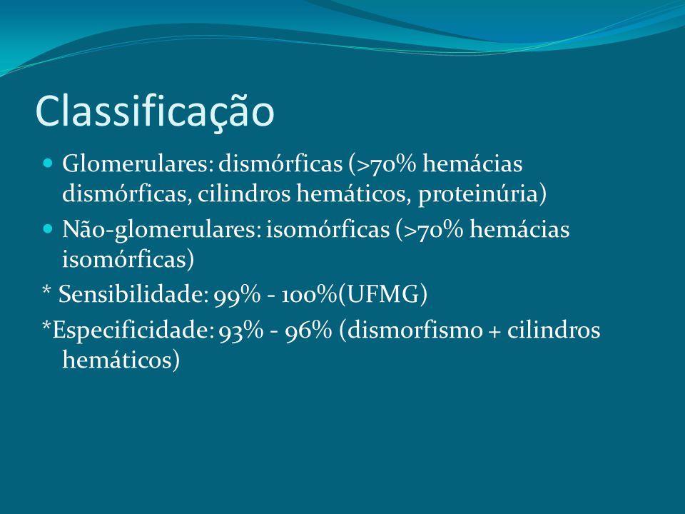 Classificação Glomerulares: dismórficas (>70% hemácias dismórficas, cilindros hemáticos, proteinúria) Não-glomerulares: isomórficas (>70% hemácias isomórficas) * Sensibilidade: 99% - 100%(UFMG) *Especificidade: 93% - 96% (dismorfismo + cilindros hemáticos)