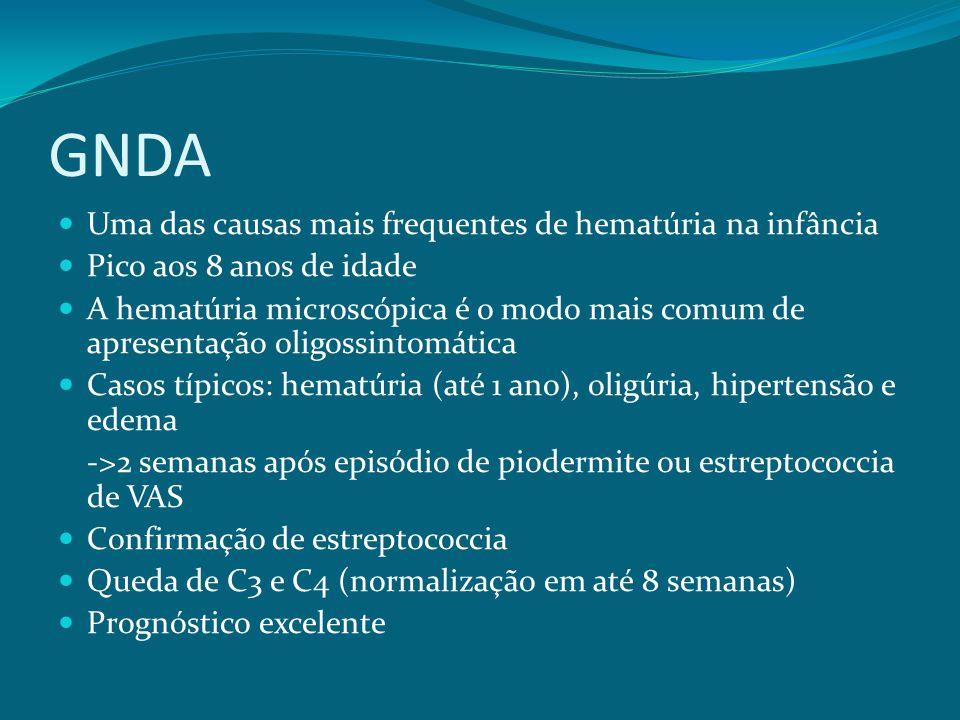 GNDA Uma das causas mais frequentes de hematúria na infância Pico aos 8 anos de idade A hematúria microscópica é o modo mais comum de apresentação oligossintomática Casos típicos: hematúria (até 1 ano), oligúria, hipertensão e edema ->2 semanas após episódio de piodermite ou estreptococcia de VAS Confirmação de estreptococcia Queda de C3 e C4 (normalização em até 8 semanas) Prognóstico excelente