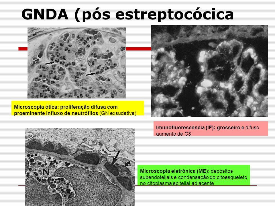GNDA (pós estreptocócica Microscopia ótica: proliferação difusa com proeminente influxo de neutrófilos (GN exsudativa) Imunofluorescência (IF): grosse