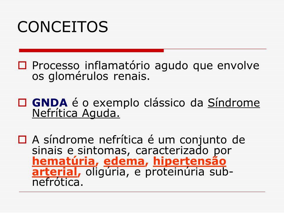 CONCEITOS Processo inflamatório agudo que envolve os glomérulos renais. GNDA é o exemplo clássico da Síndrome Nefrítica Aguda. A síndrome nefrítica é
