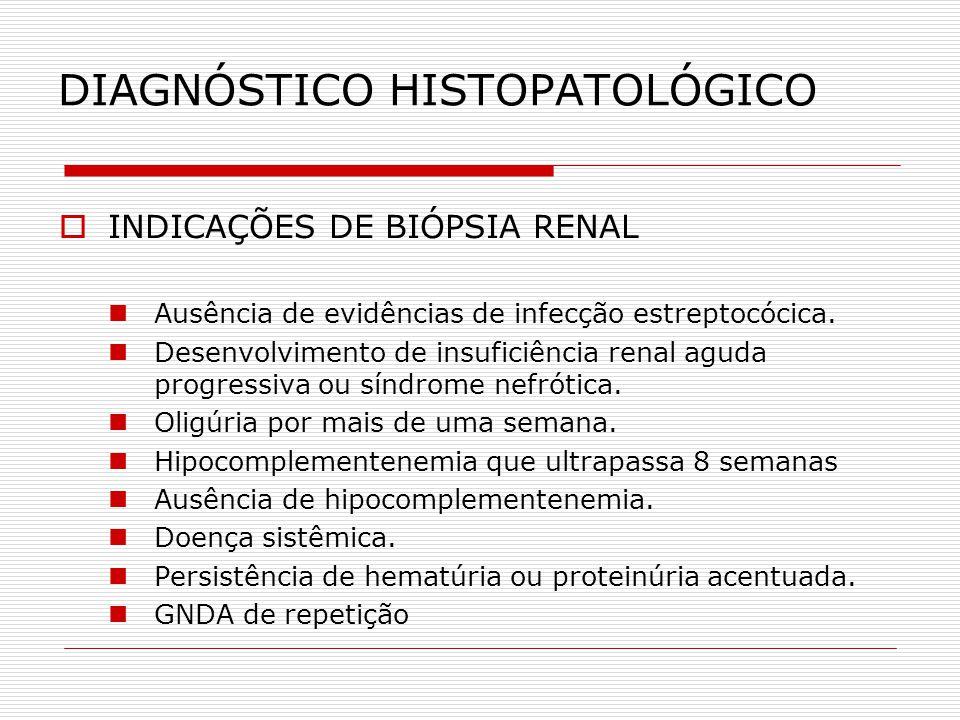 DIAGNÓSTICO HISTOPATOLÓGICO INDICAÇÕES DE BIÓPSIA RENAL Ausência de evidências de infecção estreptocócica. Desenvolvimento de insuficiência renal agud
