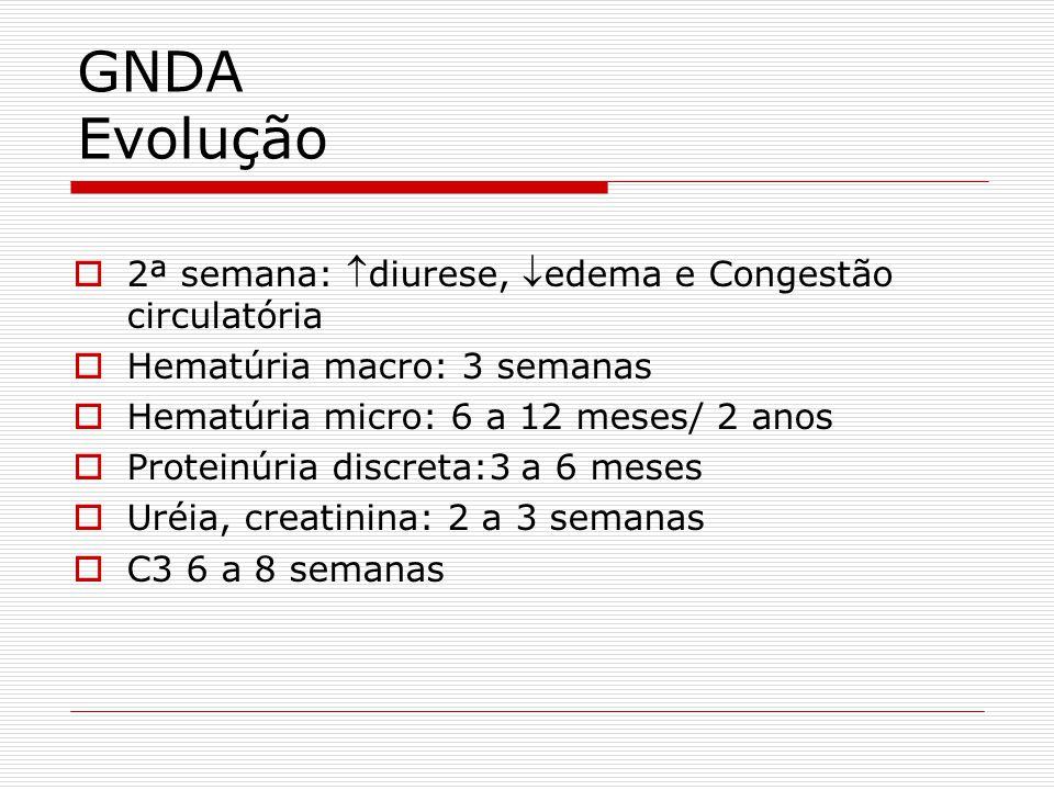 GNDA Evolução 2ª semana: diurese, edema e Congestão circulatória Hematúria macro: 3 semanas Hematúria micro: 6 a 12 meses/ 2 anos Proteinúria discreta