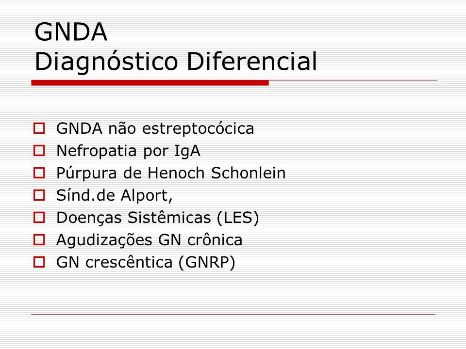 GNDA Diagnóstico Diferencial GNDA não estreptocócica Nefropatia por IgA Púrpura de Henoch Schonlein Sínd.de Alport, Doenças Sistêmicas (LES) Agudizaçõ