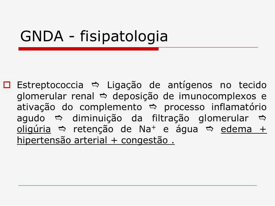 GNDA - fisipatologia Estreptococcia Ligação de antígenos no tecido glomerular renal deposição de imunocomplexos e ativação do complemento processo inf