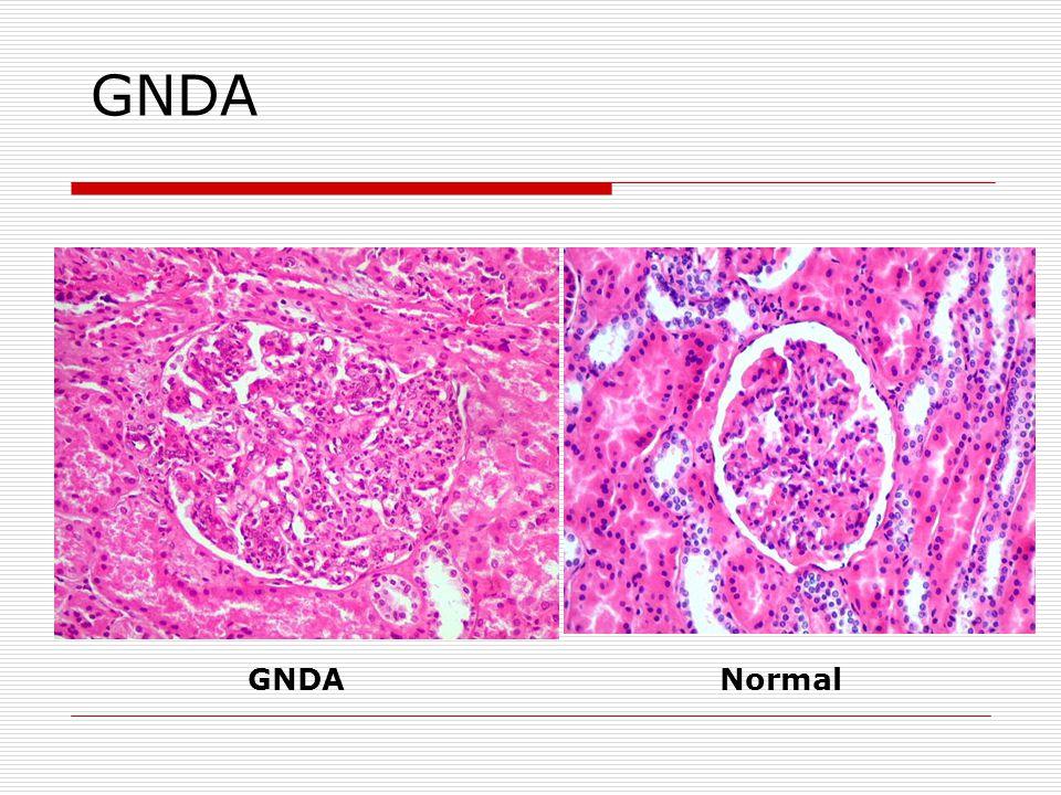 GNDA (pós estreptocócica Microscopia ótica: proliferação difusa com proeminente influxo de neutrófilos (GN exsudativa) Imunofluorescência (IF): grosseiro e difuso aumento de C3 Microscopia eletrônica (ME): depósitos subendoteliais e condensação do citoesqueleto no citoplasma epitelial adjacente