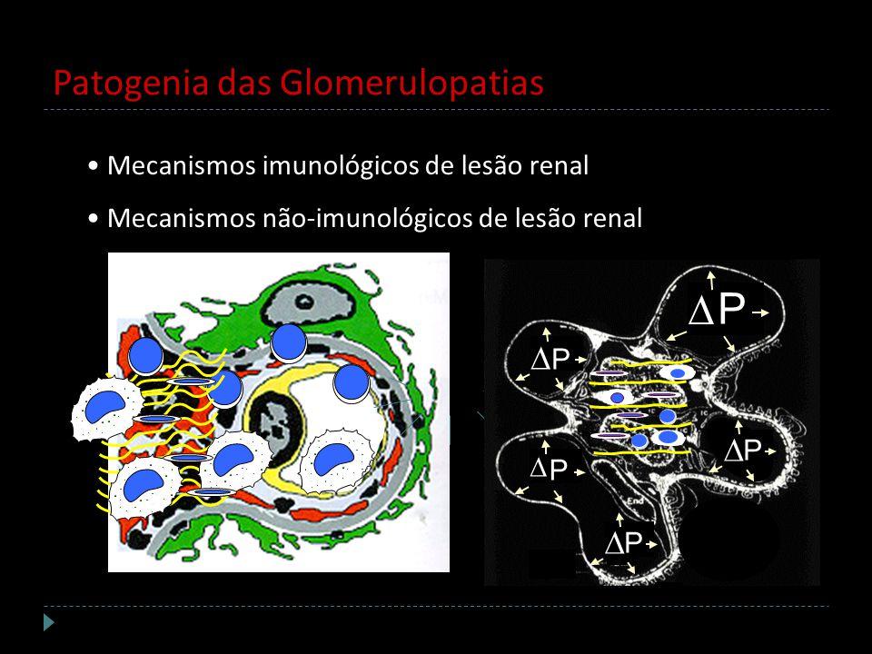 Patogenia das Glomerulopatias Mecanismos imunológicos de lesão renal Mecanismos não-imunológicos de lesão renal P P P P P