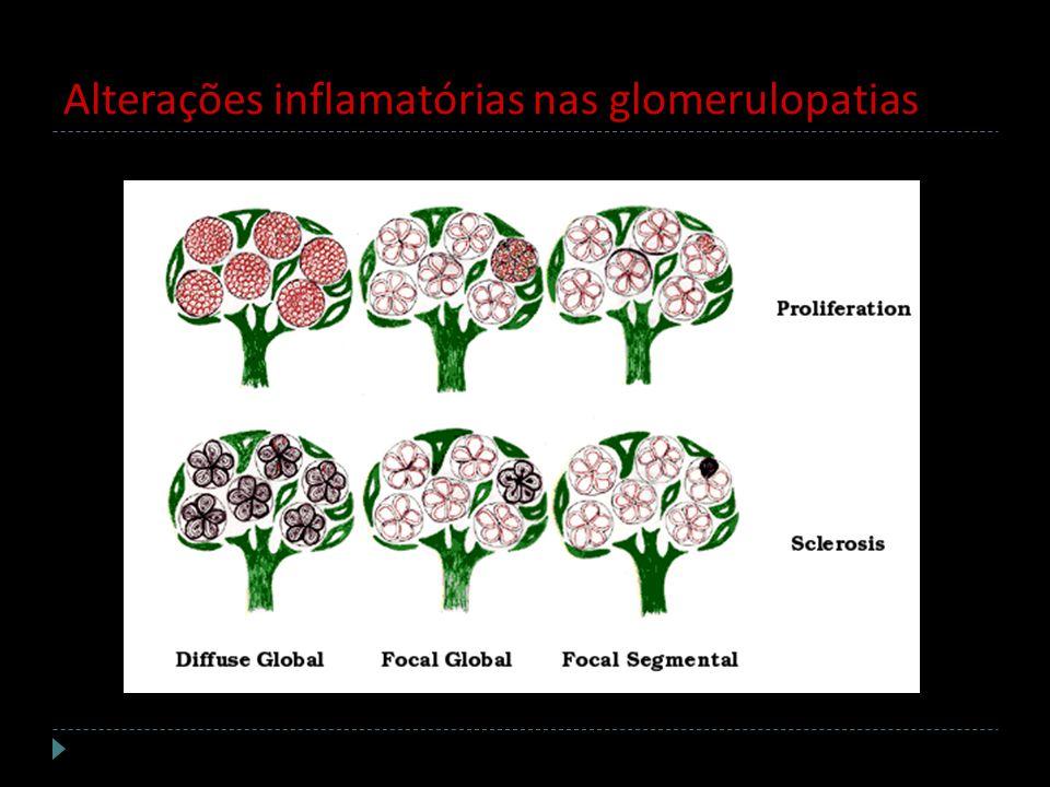 Alterações inflamatórias nas glomerulopatias