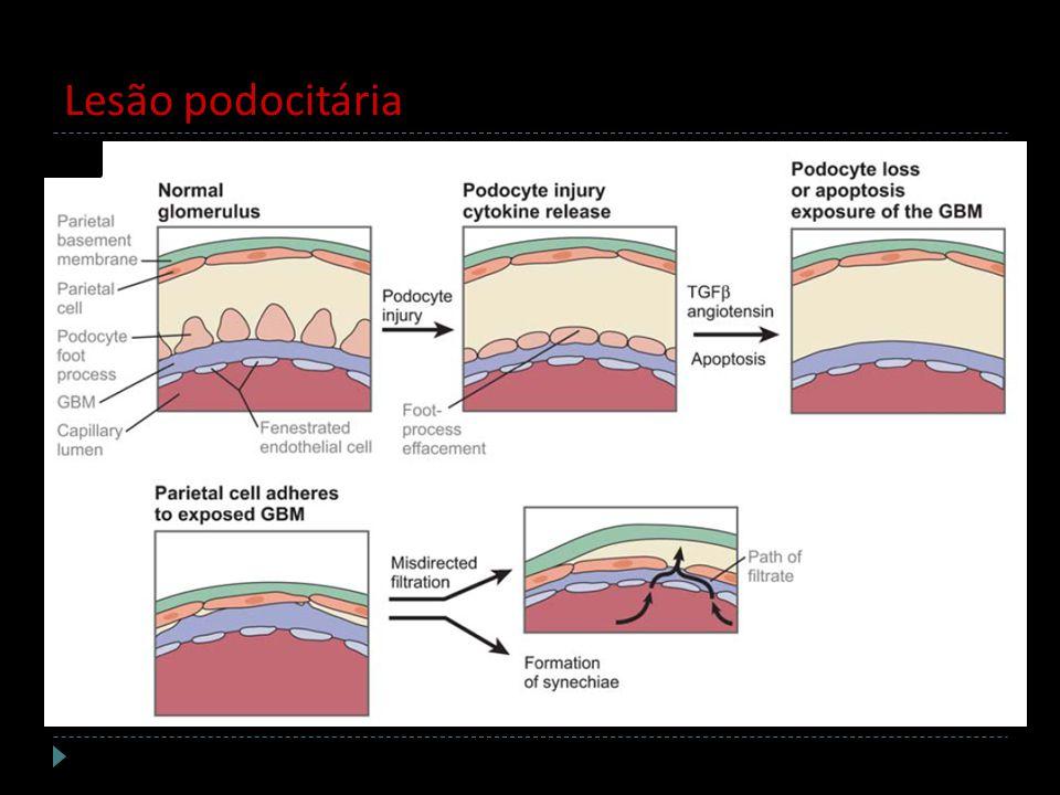 Lesão podocitária