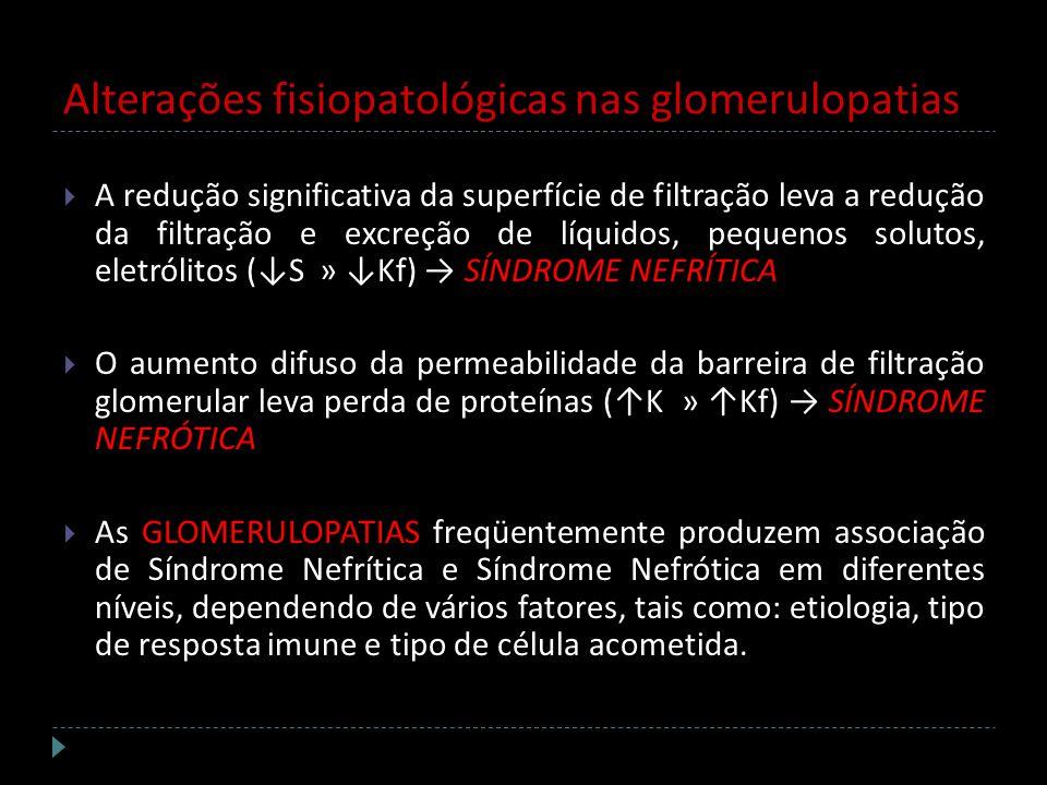 Alterações fisiopatológicas nas glomerulopatias A redução significativa da superfície de filtração leva a redução da filtração e excreção de líquidos,