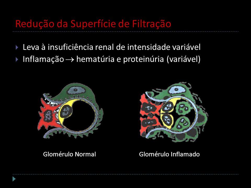 Redução da Superfície de Filtração Leva à insuficiência renal de intensidade variável Inflamação hematúria e proteinúria (variável) Glomérulo NormalGl