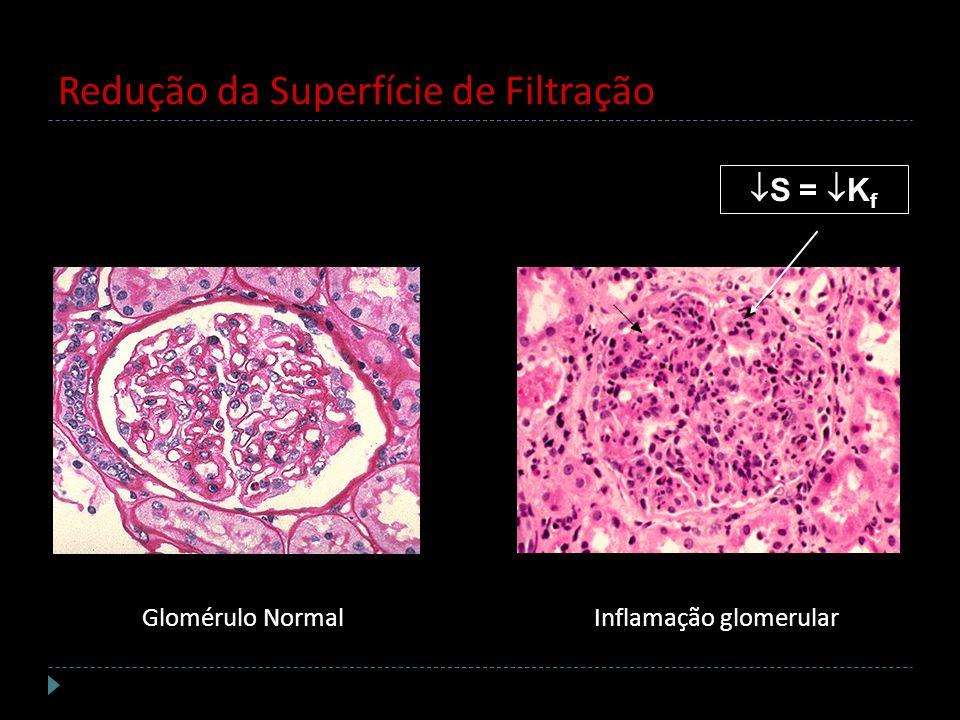 Redução da Superfície de Filtração Glomérulo NormalInflamação glomerular S = K f