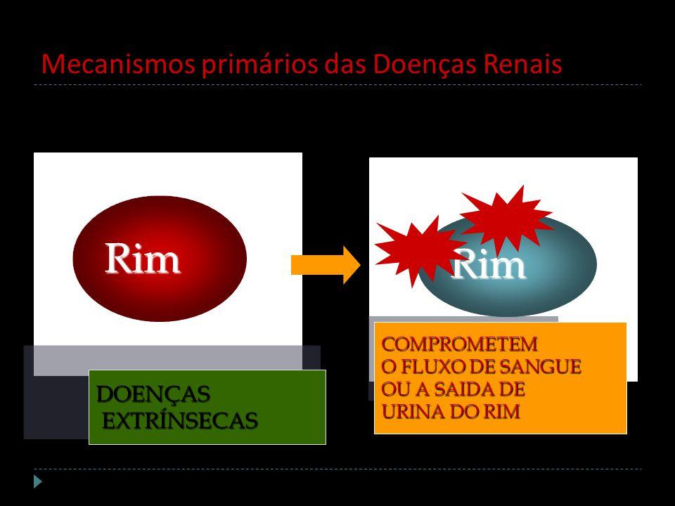 Mecanismos primários das Doenças Renais Rim Rim DOENÇAS EXTRÍNSECAS EXTRÍNSECAS COMPROMETEM O FLUXO DE SANGUE OU A SAIDA DE URINA DO RIM