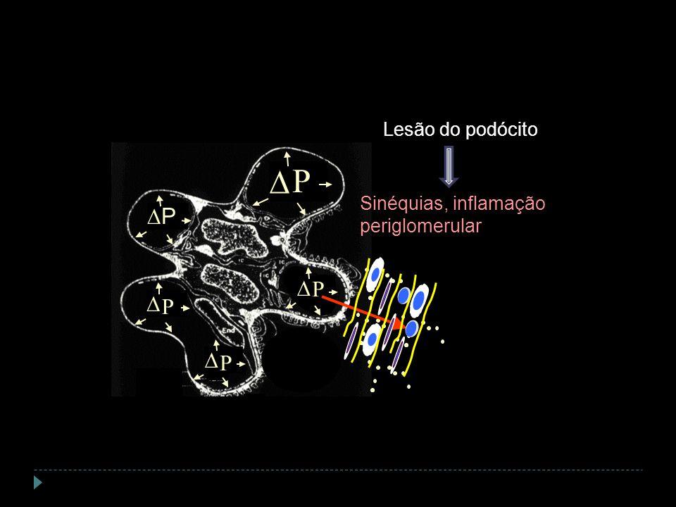 P P P P P Sinéquias, inflamação periglomerular Lesão do podócito