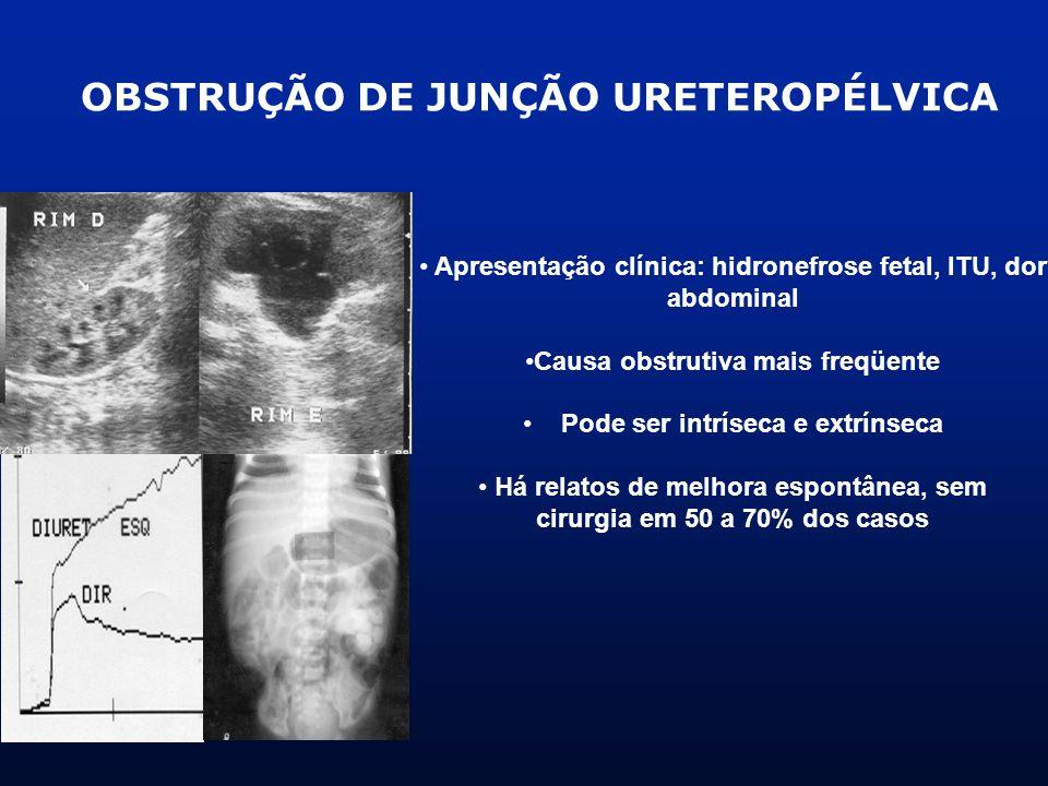 OBSTRUÇÃO DE JUNÇÃO URETEROPÉLVICA Apresentação clínica: hidronefrose fetal, ITU, dor abdominal Causa obstrutiva mais freqüente Pode ser intríseca e e