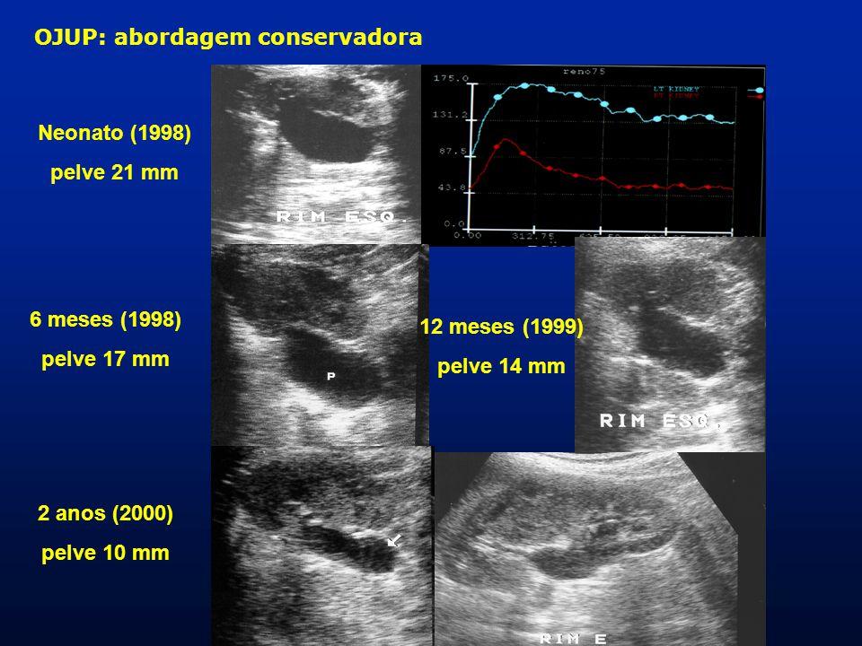 OJUP: abordagem conservadora Neonato (1998) pelve 21 mm 6 meses (1998) pelve 17 mm 2 anos (2000) pelve 10 mm 12 meses (1999) pelve 14 mm