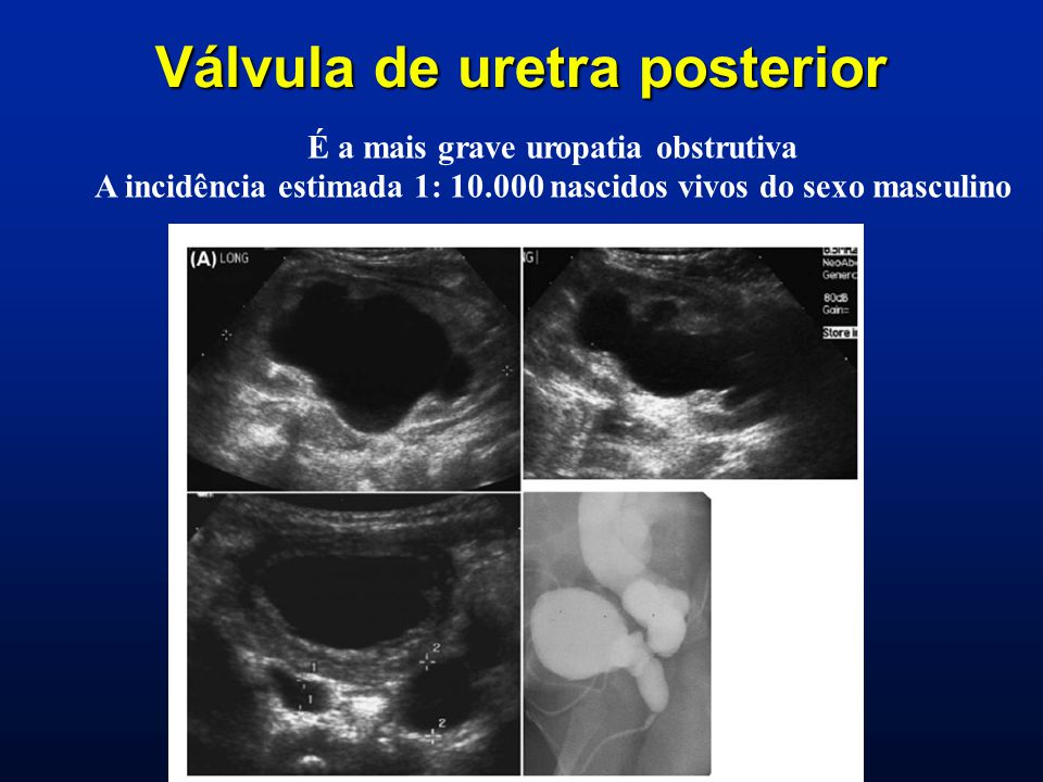 Válvula de uretra posterior É a mais grave uropatia obstrutiva A incidência estimada 1: 10.000 nascidos vivos do sexo masculino