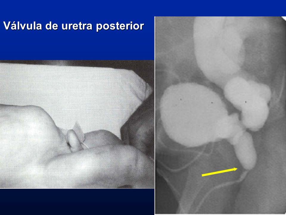 Válvula de uretra posterior