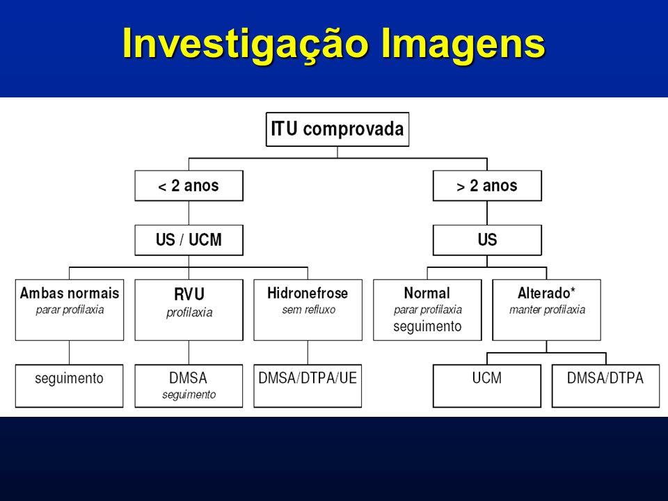 Anomalias obstrutivas do trato urinário Obstrução da junção ureteropélvicaObstrução da junção ureteropélvica Obstrução da junção ureterovesicalObstrução da junção ureterovesical Ureterocele ectópicaUreterocele ectópica Válvula de uretra posterior Válvula de uretra posterior Síndrome de prune-bellySíndrome de prune-belly Bexiga neurogênicaBexiga neurogênica Atresia uretralAtresia uretral