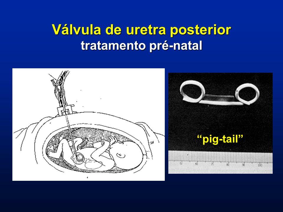 Válvula de uretra posterior tratamento pré-natal pig-tail