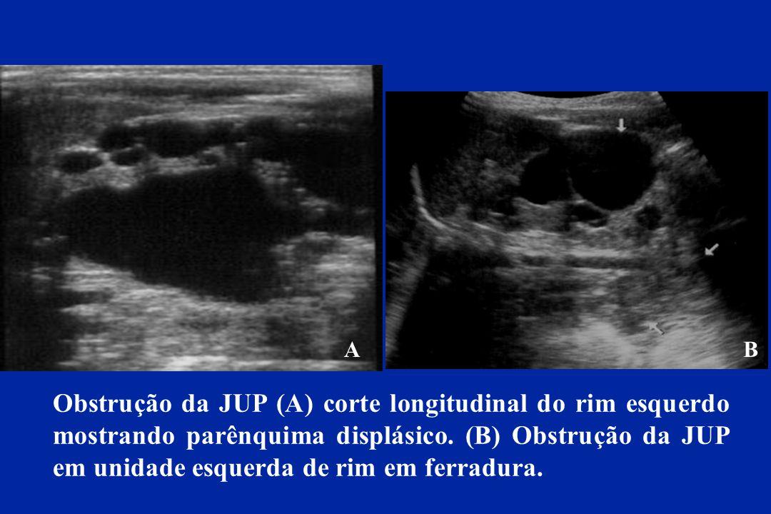 Obstrução da JUP (A) corte longitudinal do rim esquerdo mostrando parênquima displásico. (B) Obstrução da JUP em unidade esquerda de rim em ferradura.